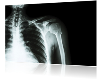 Collarbone And Shoulder Pain After Car Accident